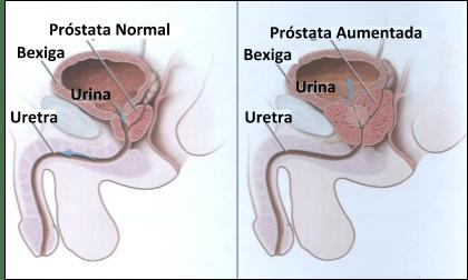 Hiperplasia Benigna da próstata imagem