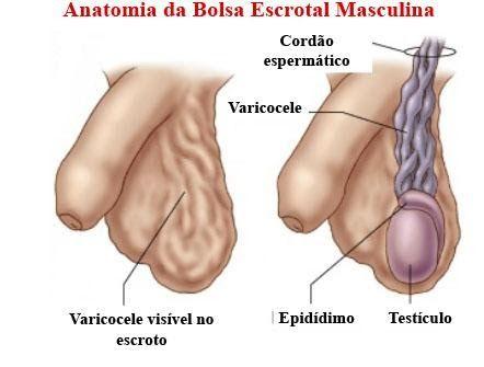 anatomia varicocelo