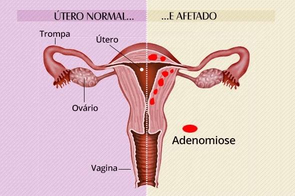adenomiose - dores durante sexo