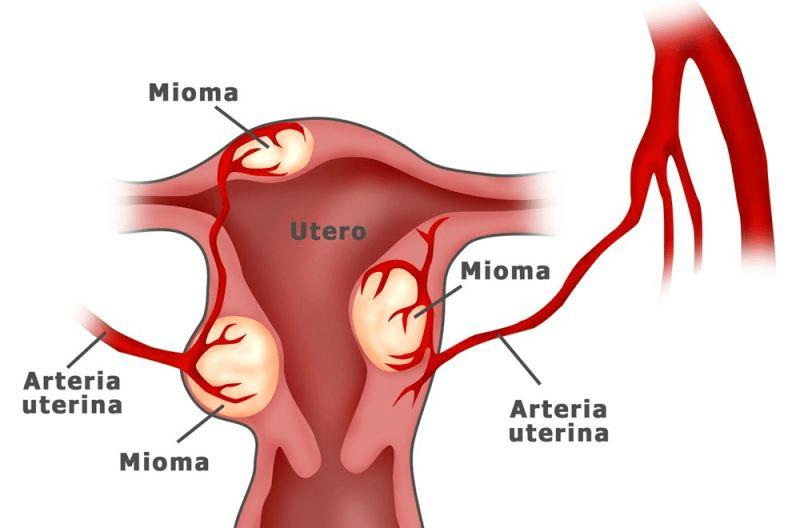 dificuldades menstruais - adenomiose