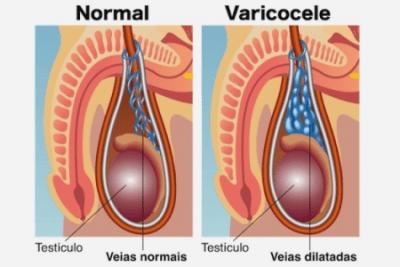 varicocelo - engravidar