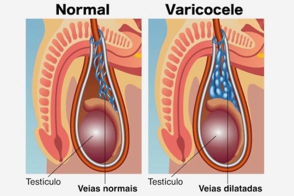 dores testiculares- varicocelo
